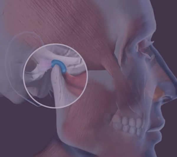 img anatomia ATM - articulação temporomandibular